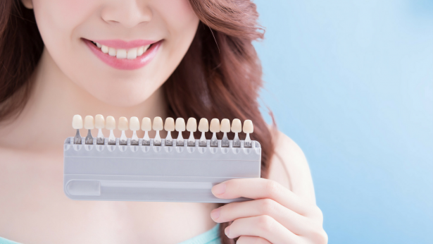 Denti gialli: come sbiancare il sorriso