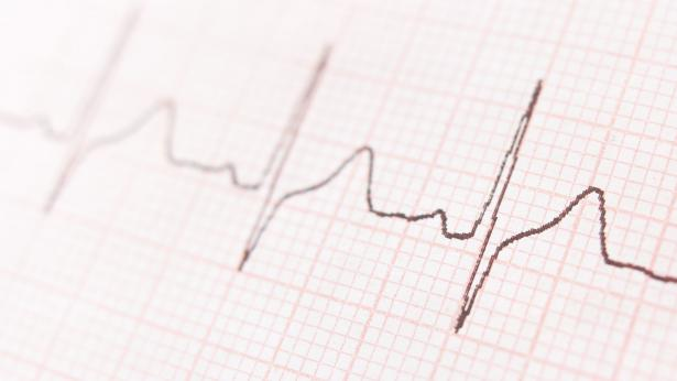 Conseguenze e trattamenti per la fibrillazione atriale