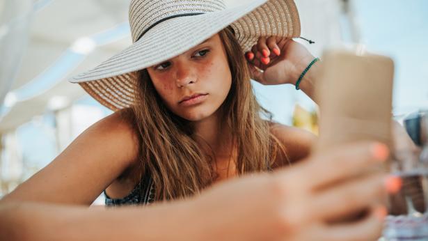 Il sole aiuta a combattere l'acne?