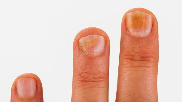 Le malattie delle unghie