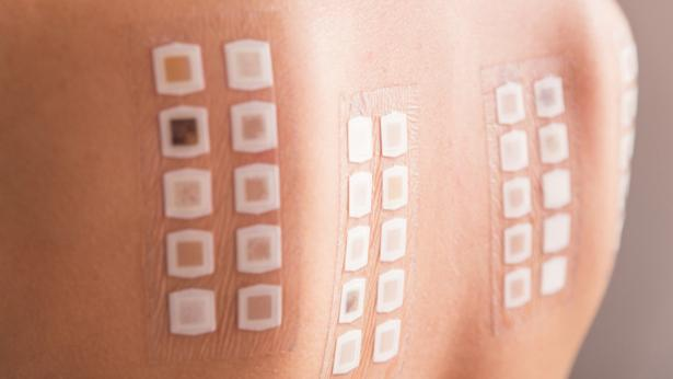 Patch test, come si esegue?