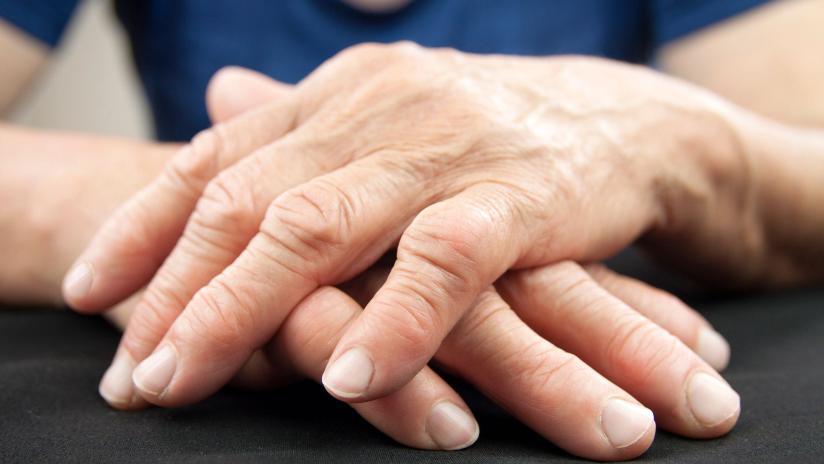 Artrosi del pollice (rizoartrosi)