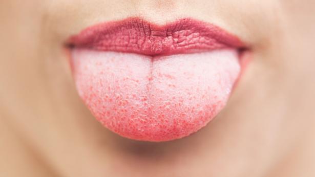 Glossite: cause e rimedi per la lingua che brucia