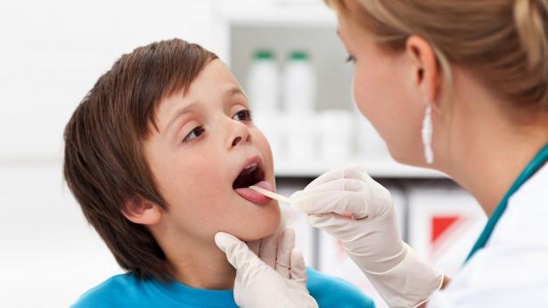 Sintomatologia, cure e soluzioni per la tonsillite cronica e acuta