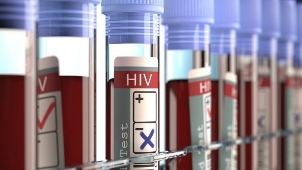 Dal virus dell'HIV alla malattia. Trasmissione e prevenzione dell'AIDS