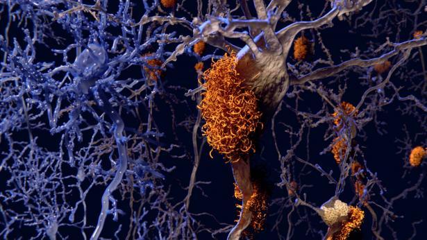 Alois Alzheimer, il neurologo che scoprì la malattia