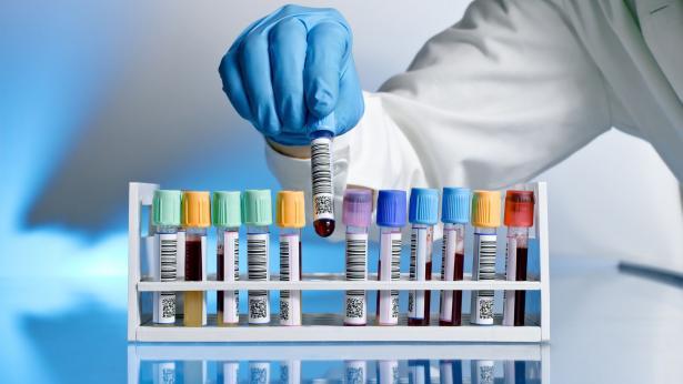 Gruppi sanguigni: classificazioni e caratteristiche