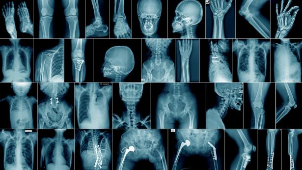 Madame Curie e la radiologia