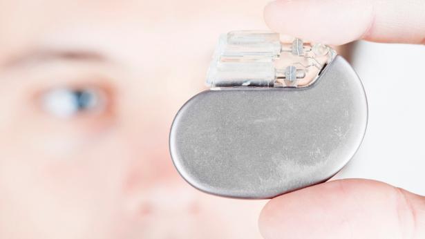 Pacemaker: evoluzione di uno strumento salvavita