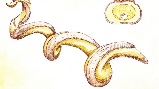 Sifilide: il mal francese