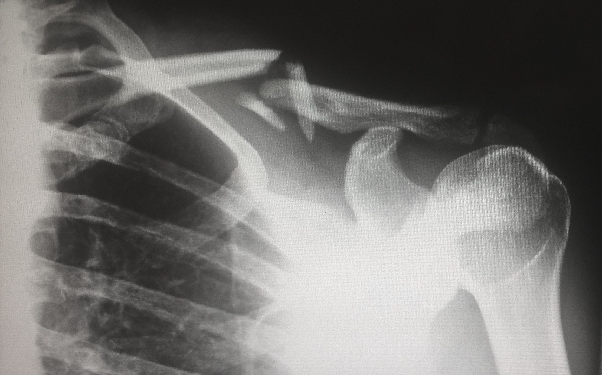 carcinoma prostatico metastasi osseo terapia la