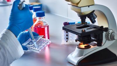 La progressione del tumore prostatico: il segreto nelle cellule staminali tumorali