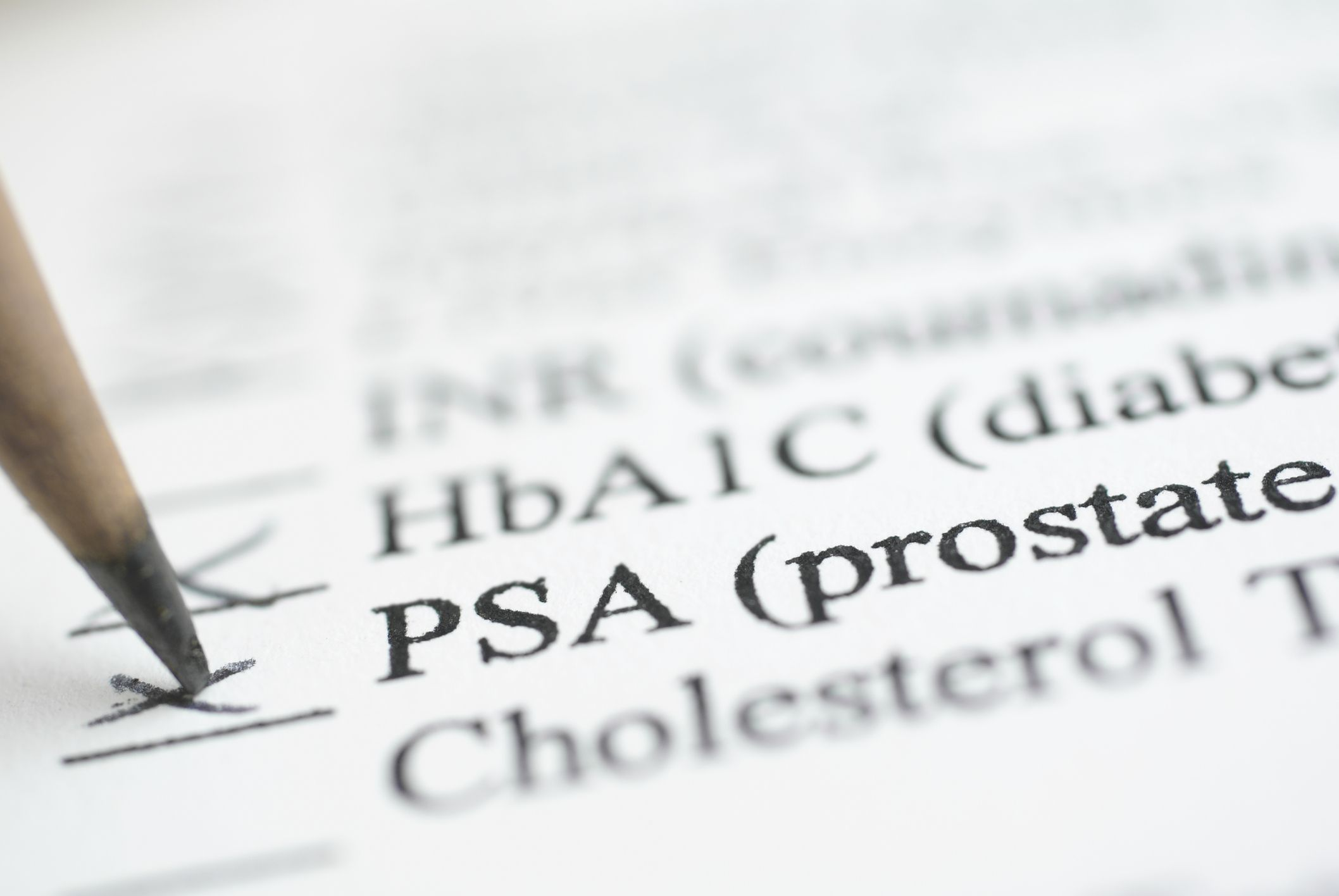 un emocromo completo può rilevare il cancro alla prostata