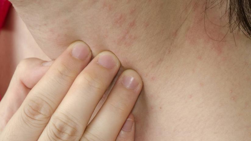allergie alimentari: cause e sintomi - paginemediche