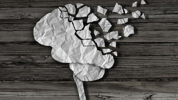 Alzheimer, sintomi e diagnosi