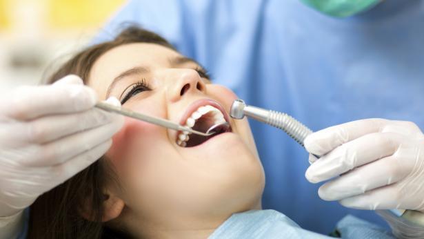 Carie dentaria: come si presenta e come si previene