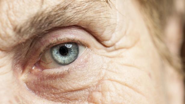 Cataratta: sintomi, cause e intervento