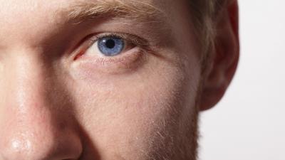 Cheratocono: la malattia degenerativa ed evolutiva della cornea