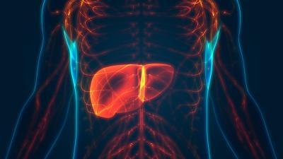 Cirrosi epatica: cause e sintomi