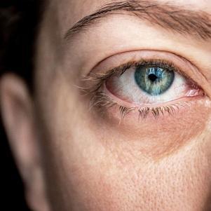 Sindrome dell'occhio secco: sintomi, cause e rimedi