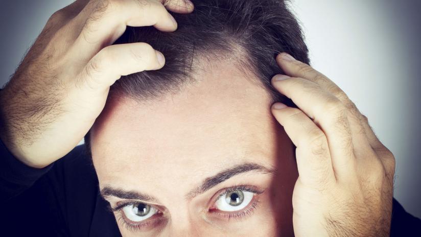Definizione e classificazione delle alopecie - Paginemediche 3a4969226855