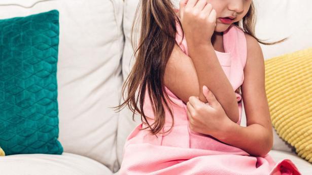 Dermatite atopica: sintomi e diagnosi