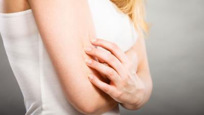 Manifestazioni cliniche della dermatite atopica