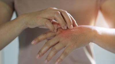 Dermatite da stress: cause, sintomi e rimedi