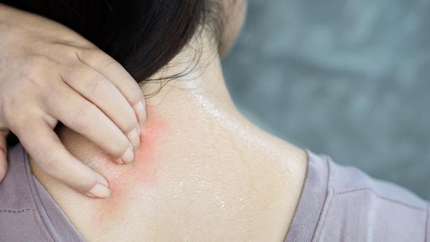 Dermatite da sudore: che cos'è e come si cura