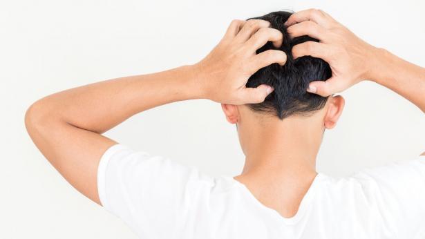 Dermatite seborroica: cause e sintomi