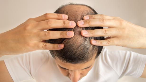 Effluvio e defluvio: perché cadono i capelli?