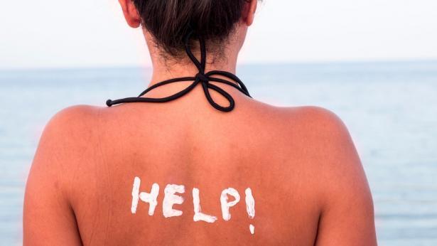 Eritema solare: come riconoscerlo e come prevenirlo