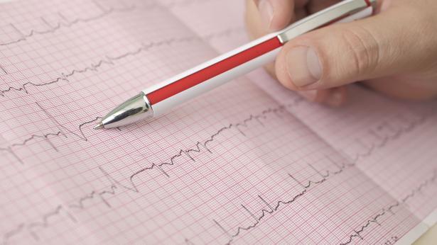 Fibrillazione atriale: cause, sintomi e terapie