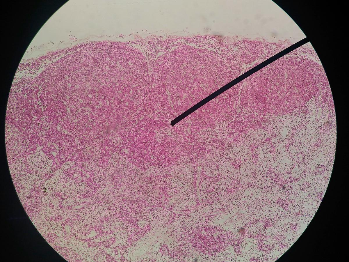 papilloma virus uomo condilomi