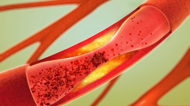 La sindrome metabolica e i fattori di rischio della malattia vascolare