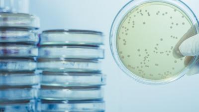 Legionella e Legionellosi: sintomi, diagnosi e terapia