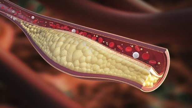 Macroangiopatia: una complicanza del diabete