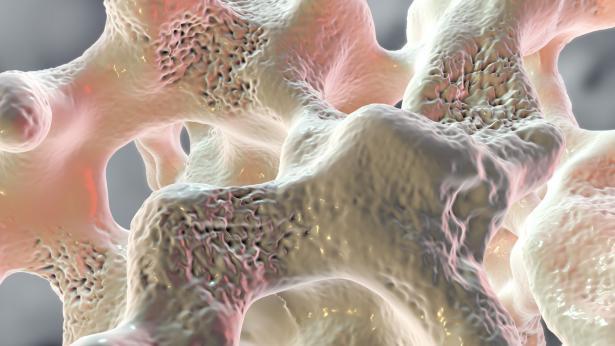 Esami da fare per la diagnosi di osteoporosi