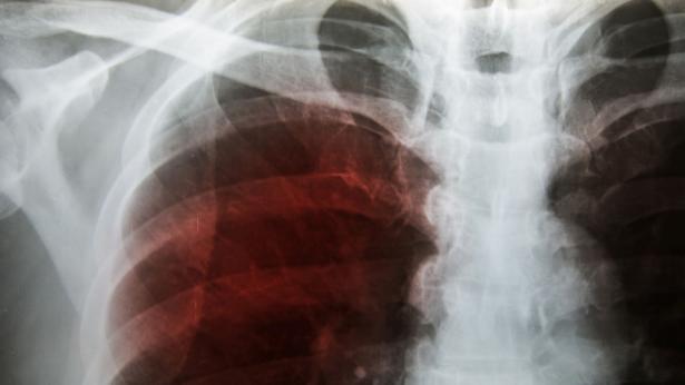 Pleurite, sintomi e cause dell'infiammazione della pleura