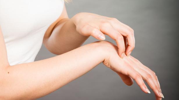 Scabbia: sintomi e terapia dell'infezione da Sarcoptes scabiei