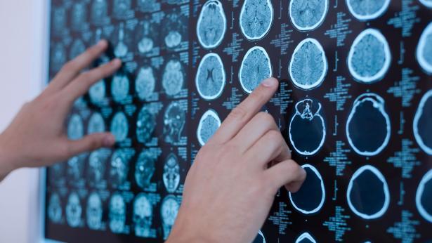 Sclerosi Laterale Amiotrofica (SLA): i sintomi per riconoscere la malattia