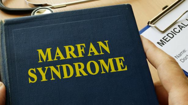 Sindrome di Marfan: cosa sapere