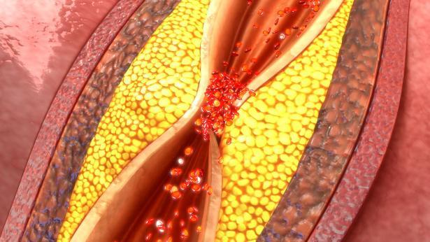 Trombosi venosa profonda: cause, sintomi e terapie