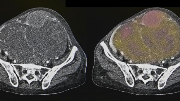 Tumore alle ovaie: i sintomi, le cause e la cura