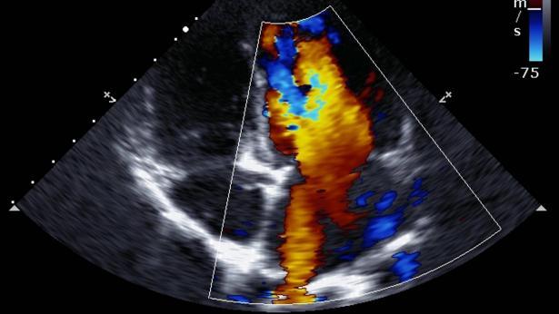 Ecocardiogramma: che cos'è e quando viene richiesto