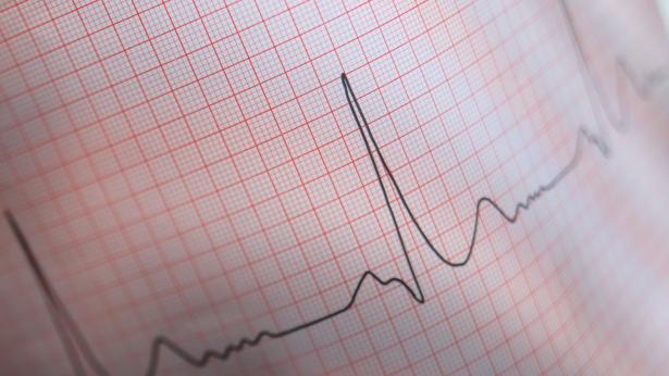 Elettrocardiogramma (ECG): che cos'è e quando si esegue