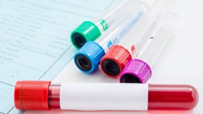 Emoglobina glicata: che cos'è e perché è importante