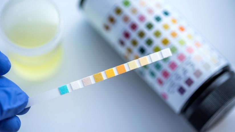 uretrite sangue urine