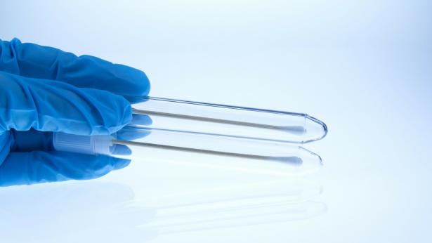 Pap-Test: quando farlo?