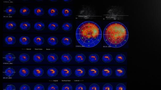 Scintigrafia miocardica